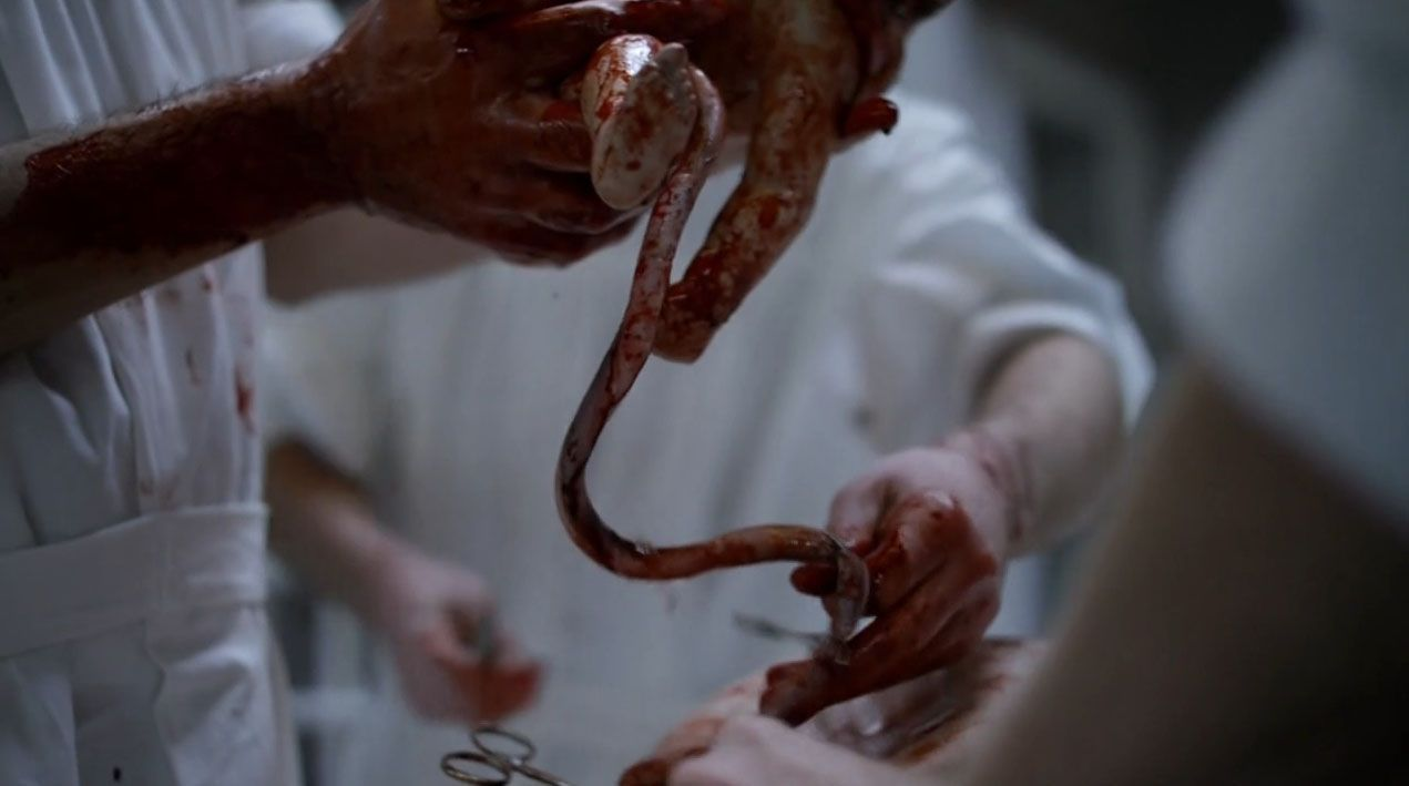 the-knick-gore-clive-owen-bebe